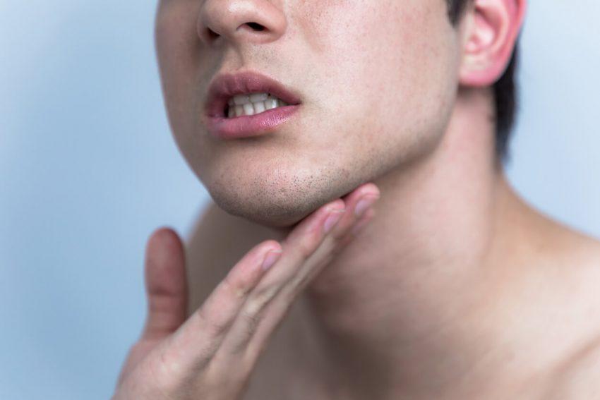 埋没毛は皮膚の下で毛が伸びるトラブル