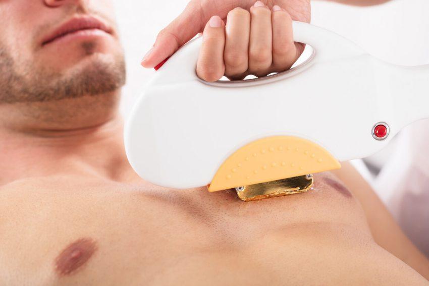 胸毛・腹毛や手足の毛は処理方法の選択肢が豊富